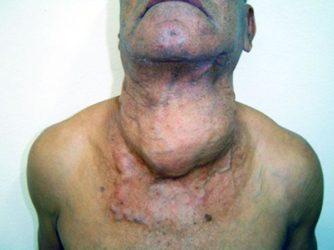 фото рак щитовидной железы