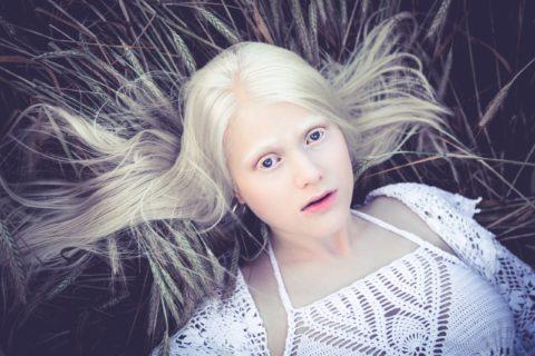 10 интересных фактов об альбиносах