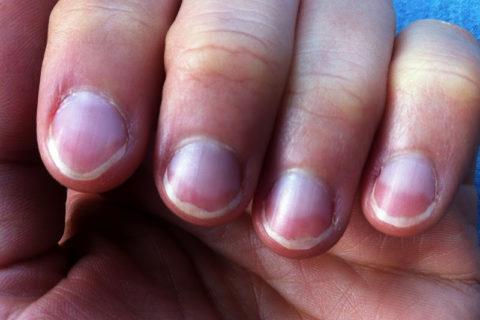 10 изменений ногтей, которые расскажут о вашем здоровье