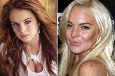10 актрис, чья карьера завершилась по вине пластических хирургов